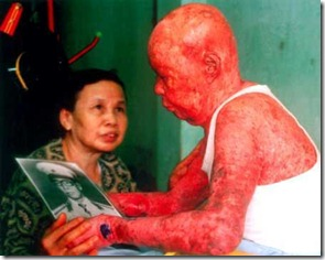 Agent-Orange-dioxin-skin-damage-Vietnam
